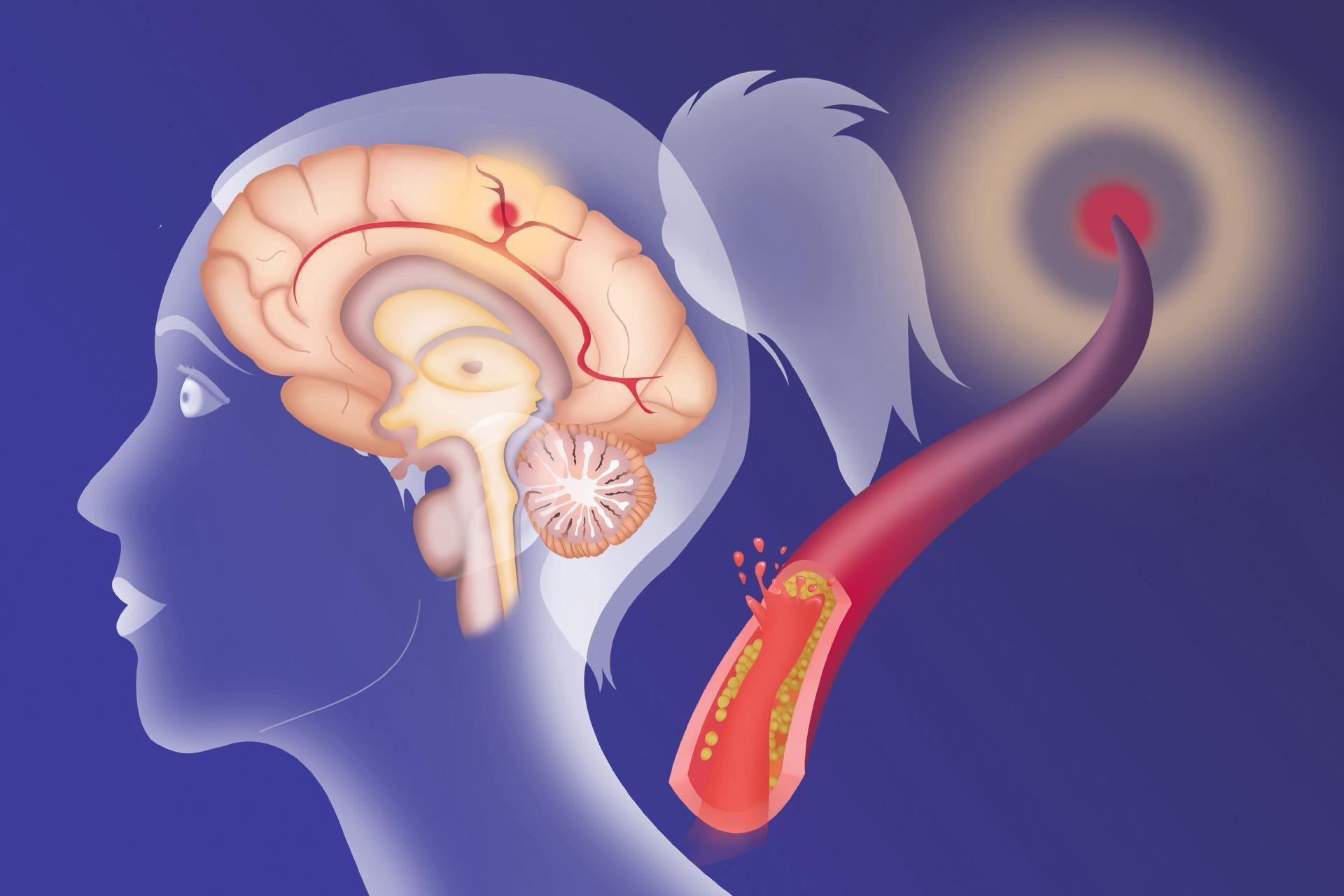 Смотреть Нарушение мозгового кровообращения: симптомы и лечение видео