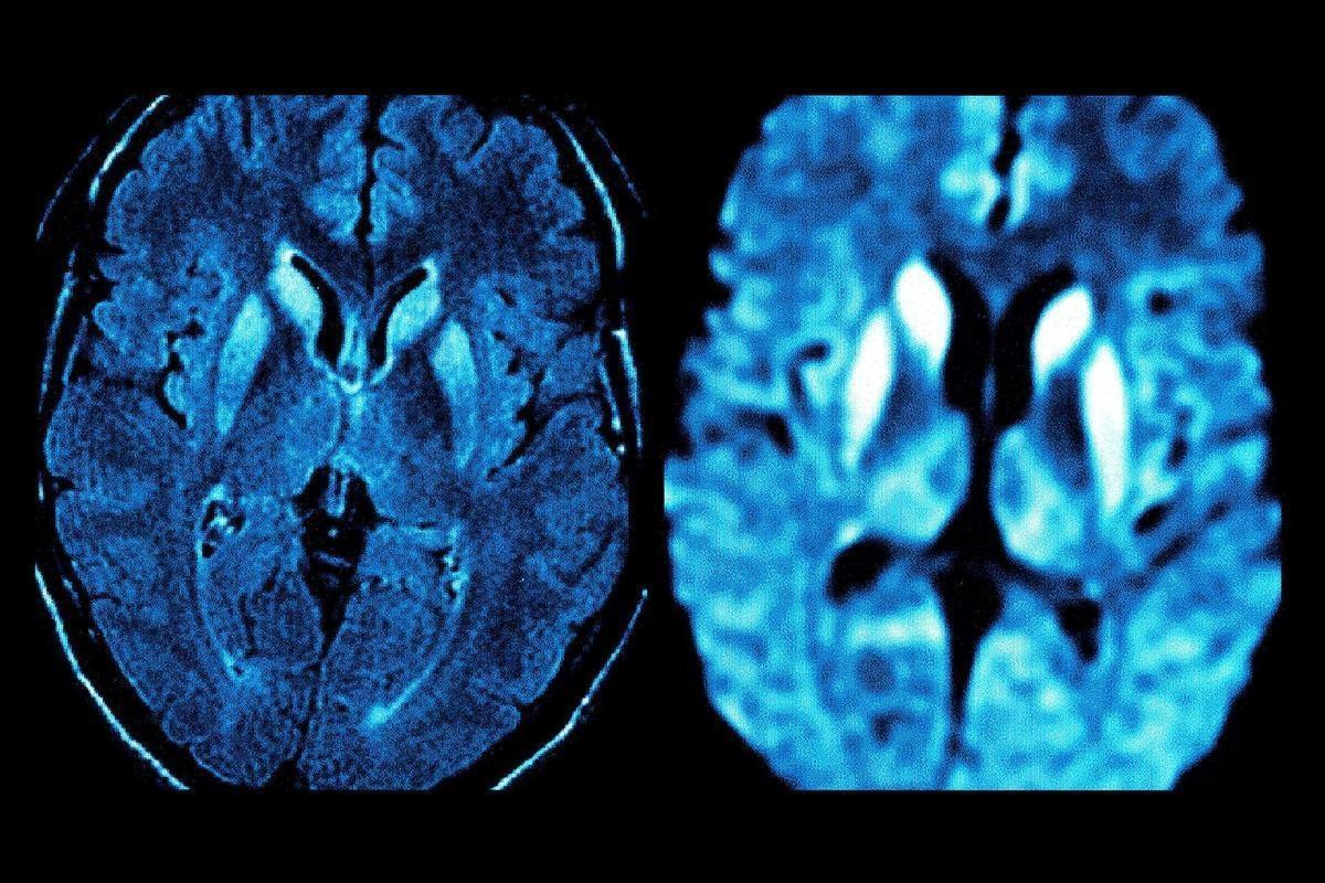Старческая энцефалопатия головного мозга